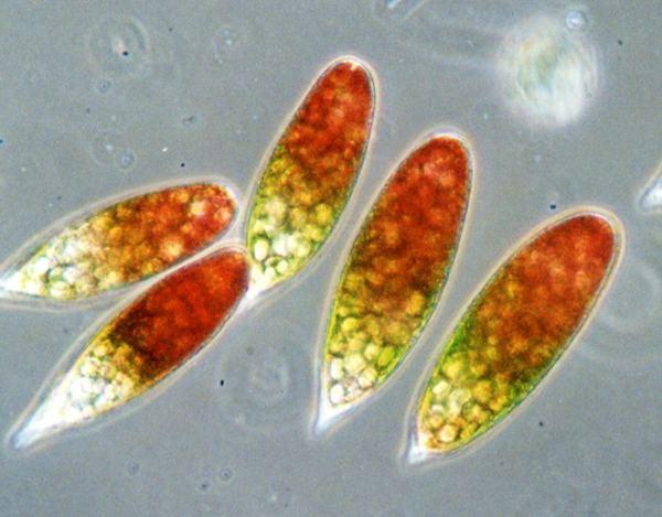 Gambar 4. Ganggang Euglena